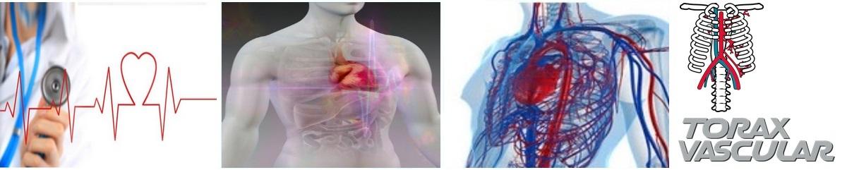 Cirug 237 A Cardiovascular